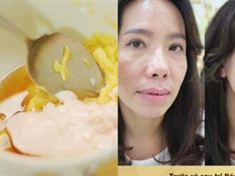 Nghiền nát loại quả này trộn với ½ hộp sữa chua đắp lên mặt 2 lần/1 tuần, nám da từng mảng kín mặt cũng được trị khỏi vĩnh viễn