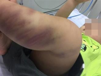 """Vụ bé trai 1 tuổi bị bạo hành nghiêm trọng: Lộ diện người phụ nữ """"bí ẩn"""" bỏ lại bé trai tại bệnh viện"""