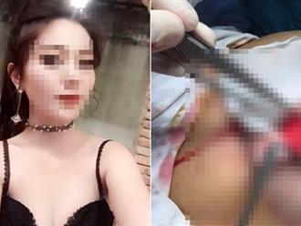 Mê làm đẹp, thai phụ 22 tuổi mạo hiểm nâng ngực khiến hai mẹ con chết thảm