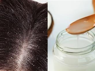 Top 5 cách trị gàu, rụng tóc cực rẻ cực hiệu quả chỉ sau 3 ngày sử dụng