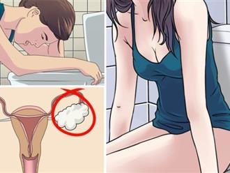 8 dấu hiệu đơn giản nhận diện u nang buồng trứng