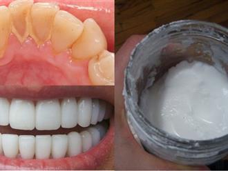 10 mẹo giúp làm trắng răng tại nhà an toàn và hiệu quả