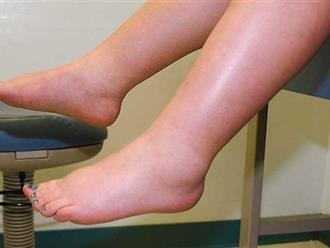 Phù chân khi mang thai khi nào thì nguy hiểm?