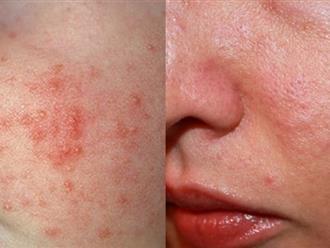 3 món ăn tuyệt đối tránh khi bị dị ứng da mặt