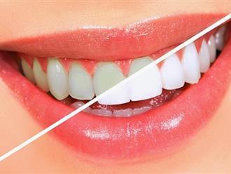 Cách làm trắng răng hiệu quả giải pháp cải thiện nụ cười cho bạn