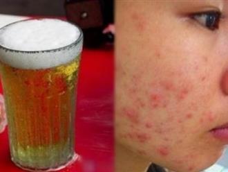 Mụn tự khắc chui ra, da dẻ còn trắng nõn chỉ từ 1 cốc bia, bạn đã thử chưa?