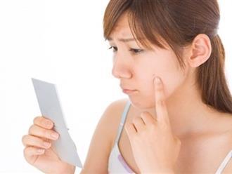 Cách chăm sóc da mặt sau khi nặn mụn không để lại vết thâm đáng ghét
