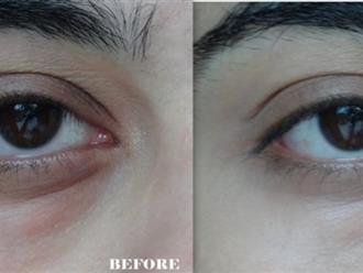 Chấm vài giọt nước muối lên da, mắt thâm xì sẽ mãi mãi ra đi chỉ sau 5 phút