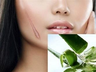 Trị sẹo lồi bằng nha đam – Giúp bạn xóa bỏ sẹo lấy lại làn da đẹp an toàn tuyệt đối