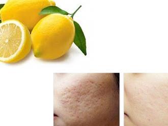 Trị sẹo lõm thủy đậu giúp tái tạo cấu trúc biểu bì nâng cao thẩm mỹ cho làn da
