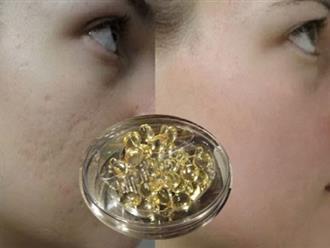 Trị sẹo lõm lâu năm bằng vitamin E – Bí quyết duy trì làn da căng mịn tươi sáng