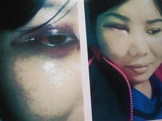 TP.HCM: Vợ bị đánh hội đồng vì nhắn tin nhắc nhở bồ nhí đừng liên lạc với chồng mình nữa