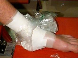 Dùng cách này chữa bong gân bàn chân đảm bảo hiệu quả cao mà bạn không ngờ