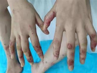 Cô gái bị mụn rộp ở tay chân sau khi ăn cá mỗi ngày, bác sĩ lý giải nguyên nhân
