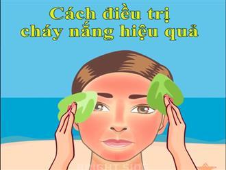 6 cách làm giảm đau rát khi da bị cháy nắng