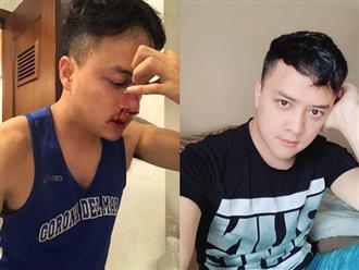 Cao Thái Sơn chia sẻ tình hình sức khoẻ sau cuộc phẫu thuật vì vỡ mạch máu mũi