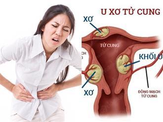 Nhiều chị em phụ nữ hối hận vì đã bỏ qua những dấu hiệu này của bệnh u xơ tử cung