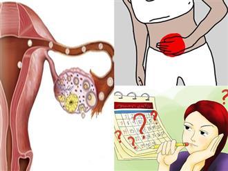 Ung thư buồng trứng: Dấu hiệu sớm của bệnh thường bị chị em ngó lơ