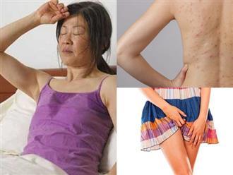Hàng loạt tác hại đối với sức khỏe chỉ vì mặc quần áo ướt mồ hôi quá lâu vào mùa hè