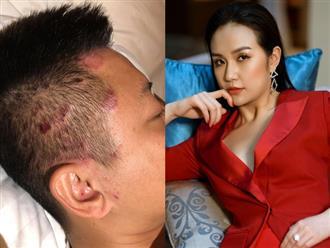 Tuấn Hưng mắc bệnh khó chữa, vợ xinh đẹp cũng bị stress theo