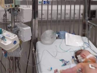 Bé gái 3 tháng tuổi nguy kịch vì uống sữa non pha với sữa mẹ