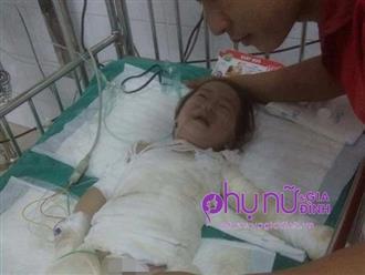 Nhói lòng ánh mắt cầu cứu của bé gái 3 tuổi bị bỏng nặng khi ngã vào nồi nước sôi