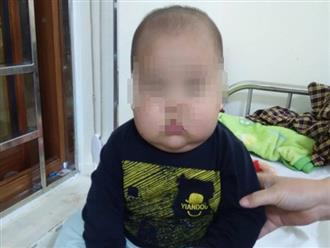 Bé trai 17 tháng suy thượng thận, phù mặt do uống thuốc không theo đơn