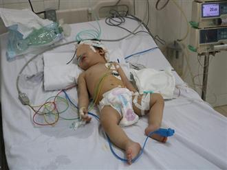 Bé 13 tháng tuổi bị dập não, vỡ xương sọ vì tivi rơi vào đầu