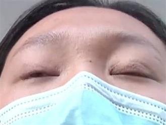 Chi 65 triệu đồng để phẫu thuật cắt mí, đẹp đâu chẳng thấy cô gái sốc khi phát hiện bất thường oái oăm ở đôi mắt của mình