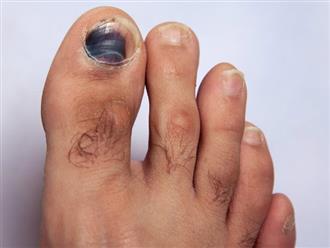 Bạn có lo lắng: Móng chân bị thâm đen là bệnh gì?