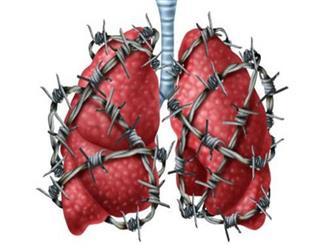 """Người khỏe trước hết nhờ phổi: 6 việc giúp """"giải phóng"""" phổi khỏi bệnh tật, ung thư"""