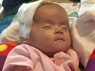 Sự sống mong manh của bé gái song sinh 1 tháng tuổi mắc bệnh não úng thủy