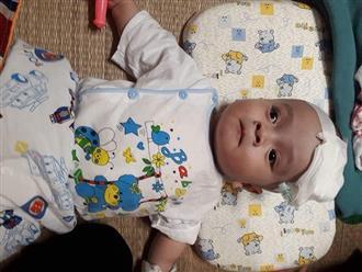 Ánh mắt cầu cứu của bé trai mắc bệnh não úng thủy, 9 tháng tuổi trải qua 10 ca phẫu thuật giành giật sự sống
