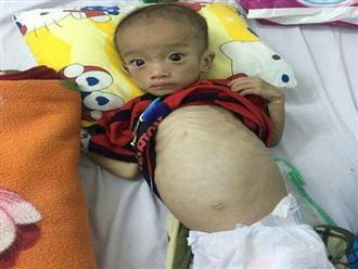 Xót thương số phận bé trai bị suy dinh dưỡng nặng, 9 tháng tuổi chỉ nặng 5kg
