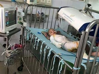 Ngã vào nồi mật mía vừa nấu, bé trai 4 tuổi bị bỏng nguy kịch: 'Giá tôi được gánh đau đớn thay con'