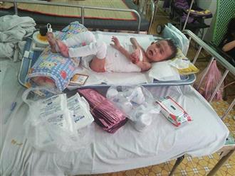 Số phận bất hạnh của bé trai 4 tuổi mồ côi mẹ, toàn thân bong tróc, tứa máu vì căn bệnh quái ác