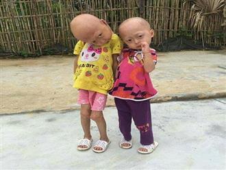 Xót xa số phận của hai bé gái mang hình hài dị dạng vì căn bệnh quái ác