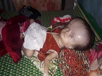 Nghiệt ngã số phận của bé gái 16 tháng tuổi mắc phải căn bệnh não úng thủy