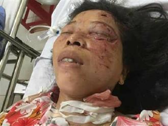 Thảm cảnh gia đình thai phụ nguy kịch vì tai nạn giao thông