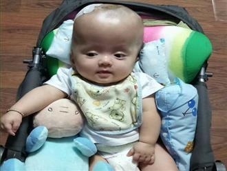 Hạnh phúc vỡ òa của cặp vợ chồng trẻ sau hơn 4 tháng cùng con trai mắc não úng thủy giành giật sự sống tại Singapore
