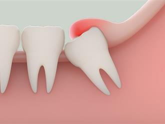 Nhổ răng khôn liệu có ảnh hưởng tới trí thông minh của chúng ta hay không?
