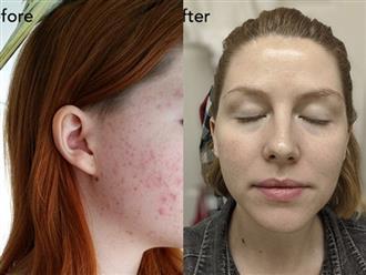 Chăm chỉ áp dụng những bước dưỡng da kiểu Hàn, làn da mọc mụn chi chít bỗng trắng mịn không tì vết