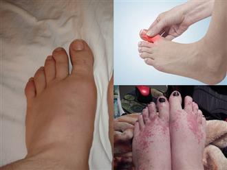 Dấu hiệu tưởng chừng đơn giản ở bàn chân nhưng lại là cảnh báo nghiêm trọng về sức khỏe