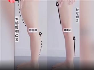 Mẹo giảm mỡ đùi cực hiệu quả, biến 'chân voi' trở nên thon gọn sau vài tuần