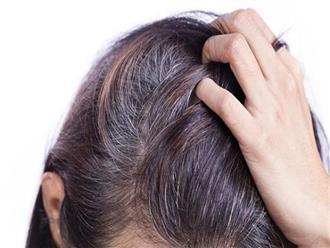 Mẹo khiến tóc bạc biến mất chỉ sau 30 phút ngay tại nhà, không cần thuốc nhuộm