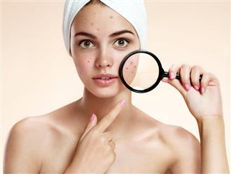 'Bật mí' cách chăm sóc da dầu mụn trở nên mịn màng