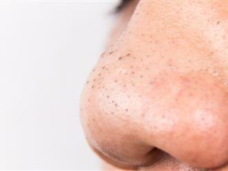 Cách làm sạch mụn đầu đen hiệu quả mà bạn không thể bỏ qua