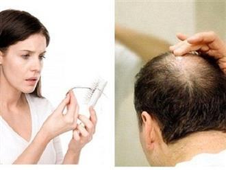 Bạn có biết rụng tóc nhiều là do thiếu chất gì hay không?
