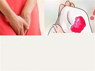 Băng huyết sau sinh là gì và cách phòng tránh băng huyết sau sinh