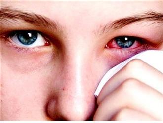 Bệnh đau mắt đỏ từ A đến Z: Nguyên nhân, dấu hiệu và cách xử lý hiệu quả